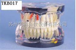 TKB017成人病态牙模