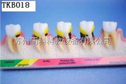 TKB018牙周病分类模型