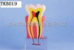 TKB019龋齿演示模型
