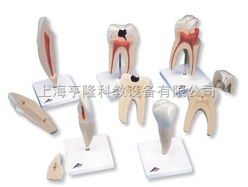 新经典牙齿模型系列,5种模型