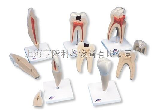 Z新经典牙齿模型系列,5种模型