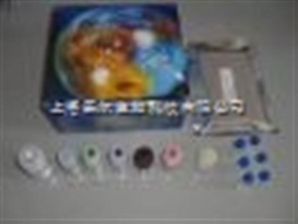 人游离脂肪酸(FFA)Elisa试剂盒