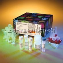 人肾损伤分子-1(Kim-1) ELISA试剂盒,上海信帆热卖,欢迎来电咨询,索要说明书
